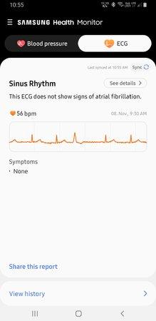 Screenshot_20201108-105540_Samsung Health Monitor.jpg