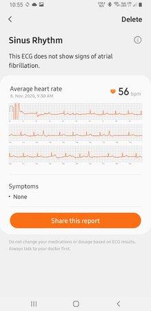 Screenshot_20201108-105548_Samsung Health Monitor.jpg